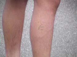 某選手の足には仁のタトゥーが。注)芝です